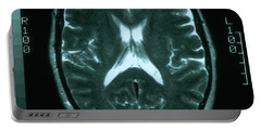 Mri Of Normal Brain Portable Battery Charger