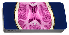 Normal Cross Sectional Mri Of The Brain Portable Battery Charger