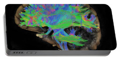 Brain, Fiber Tractography Image Portable Battery Charger