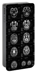 Normal Brain, 62-year-old Woman, Mri Portable Battery Charger