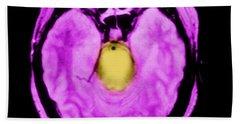 Mri Of Brainstem Glioma Beach Towel