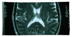 Mri Of Normal Brain Beach Towel