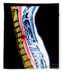 Herniated Disc In Cervical Spine Fleece Blanket