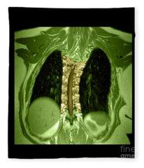 Mri Of Thoracic Scoliosis Fleece Blanket