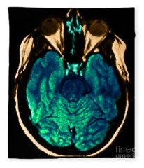 Mri Of Normal Brain Fleece Blanket