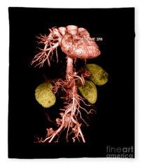 Abdominal Aorta Fleece Blanket