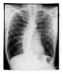 Chest X-ray - Copd And Scoliosis Fleece Blanket