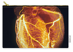 Angiogram Photographs Carry-All Pouches
