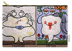 Carry-all Pouch featuring the painting The Dentist Appointment Dental Art By Anthony Falbo by Anthony Falbo