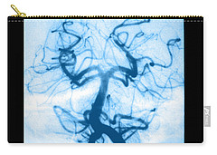 Ischemia Carry-All Pouches