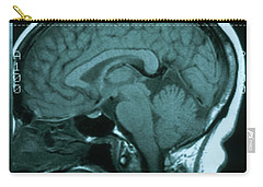 Magnetic Resonance Image Carry-All Pouches