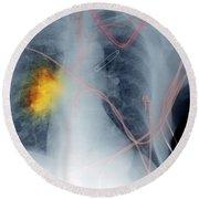X-ray, Smokers Chest Round Beach Towel