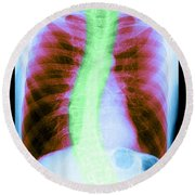 X-ray Of Copd And Scoliosis Round Beach Towel