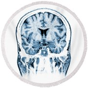 Normal Coronal Mri Of The Brain Round Beach Towel