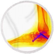 Ankle Fracture Round Beach Towel