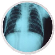 Collapsed Lung Round Beach Towel