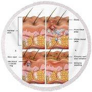 Eczema Round Beach Towel