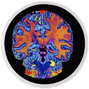 Coronal View Mri Of Normal Brain Round Beach Towel