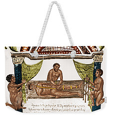 Weekender Tote Bag featuring the photograph Joint Dislocation Treatment, 1st by Science Source