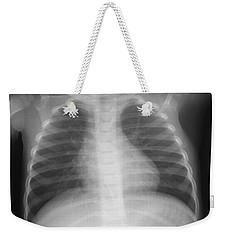 Swallowed Nail Weekender Tote Bag