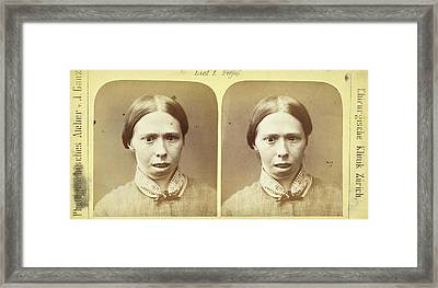 19th Century Stereoscopic Medical Images Framed Print by British Library