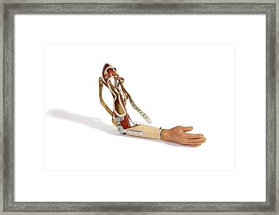 A Prosthetic Arm Framed Print