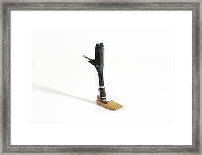 A Prosthetic Leg Framed Print