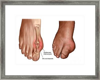 Anatomy Of A Swollen Foot Framed Print