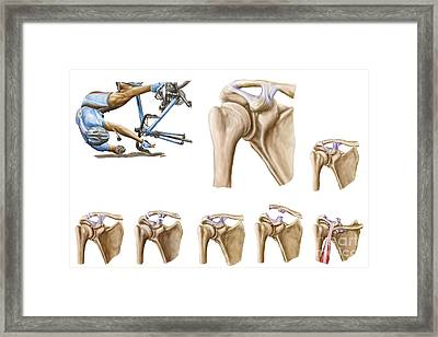 Anatomy Of Acromioclavicular Joint Framed Print
