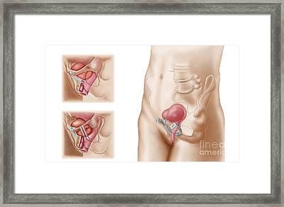 Anatomy Of Bladder Suspension Procedure Framed Print by Stocktrek Images