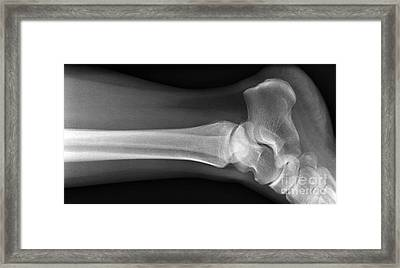 Ankle Joint, X-ray Framed Print