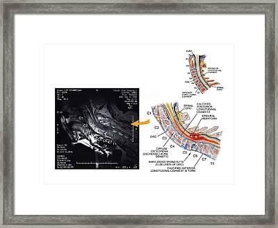 Ankylosing Spondylitis Framed Print by John T. Alesi