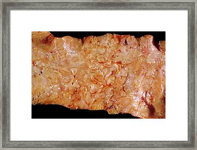 Aorta In Syphilis Framed Print by Pr. R. Abelanet - Cnri