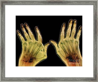 Arthritic Hands, X-ray Framed Print by Zephyr