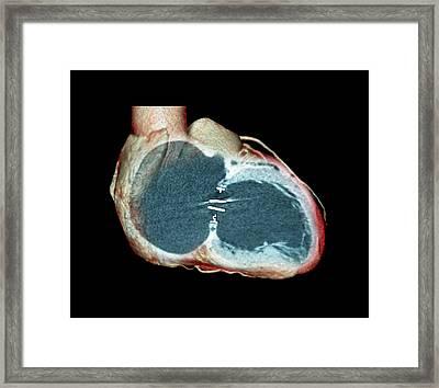 Artificial Heart Valve Framed Print by Zephyr