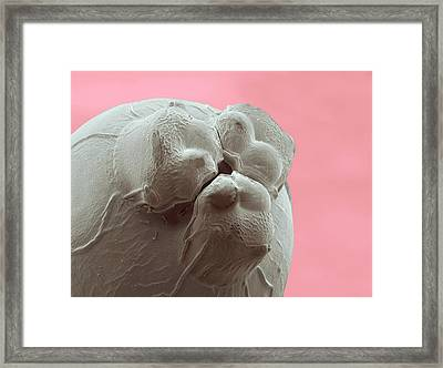 Ascaris Roundworm Framed Print by Thierry Berrod, Mona Lisa Production