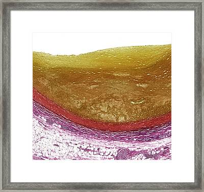 Atherosclerosis Framed Print