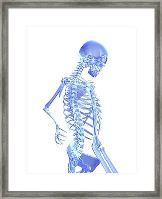 Back Pain Framed Print