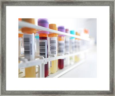 Blood Samples In Rack Framed Print