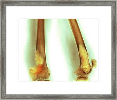 Bone Tumour Framed Print by Mike Devlin