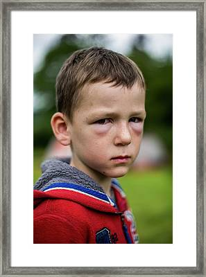 Boy With Hay Fever Allergic Reaction Framed Print