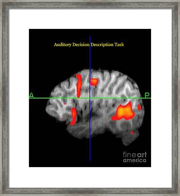 Brain Activity During Language Task, 1 Framed Print