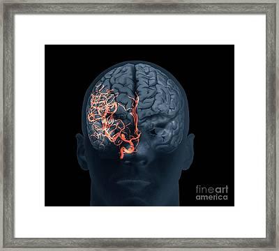 Brain Aneurysm, 3d Scan Framed Print