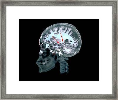 Brain In Alzheimer's Disease Framed Print by Zephyr