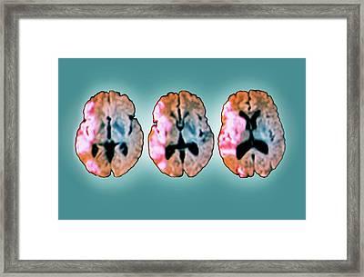 Brain In Ischemic Stroke Framed Print by Zephyr