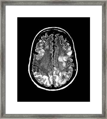 Brain In Toxic Encephalopathy Framed Print by Zephyr