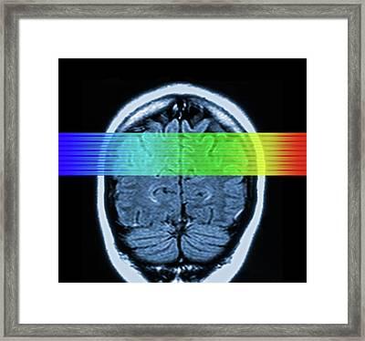 Brain Mri Scan Framed Print by Alfred Pasieka