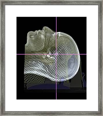 Brain Tumour Radiotherapy Treatment Framed Print by Zephyr