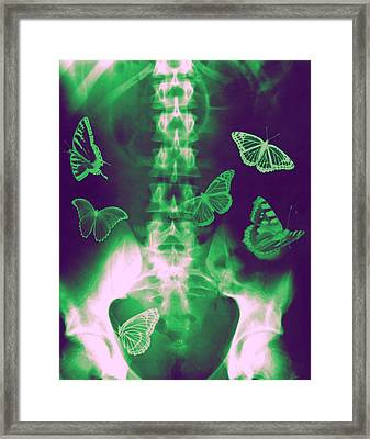 Butterflies In The Stomach Framed Print