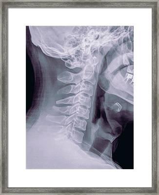 Cervical Spine X-ray Framed Print